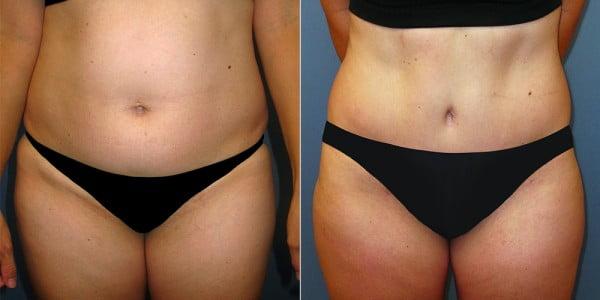 liposuction-04a