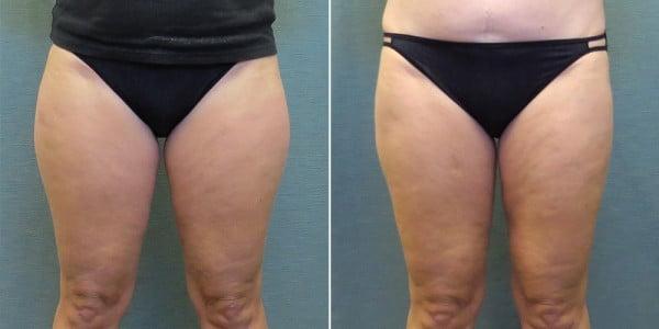 liposuction-13a