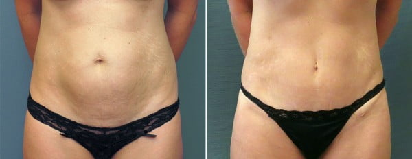 abdominoplasty-mini-09a