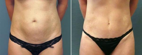 abdominoplasty-mini-09a