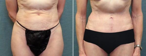 abdominoplasty-mini-10a