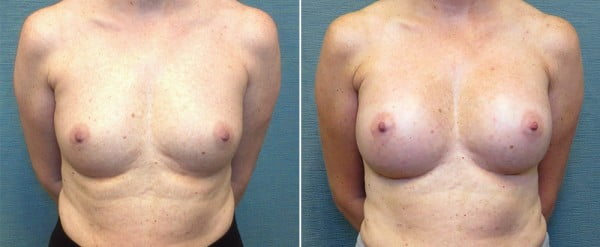 breast-augmentation-15a