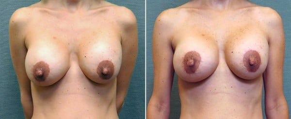 breast-implant-revision-25a-mastopexy