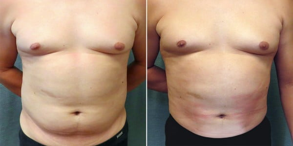 liposuction-11a