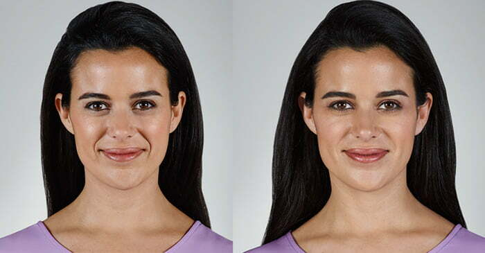 Before and after Vollure XC. Photos courtesy Allergan, inc.*
