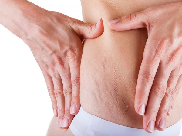 The Truth About Stretch Marks - Kirby