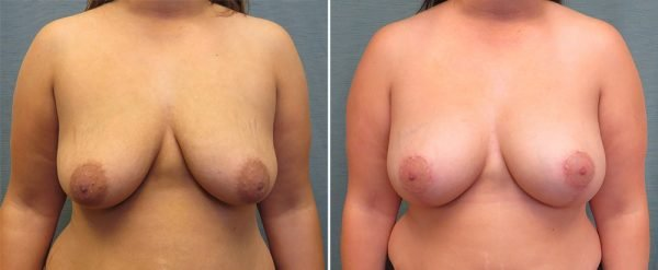 breast-lift-with-augmentation-65a-kirby