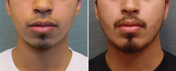 chin-augmentation-113a-left-kirby