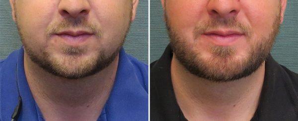 liposuction-neck-64a-kirby