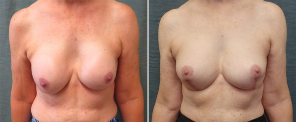 revision-breast-augmentation-with-lift-106a-kirby