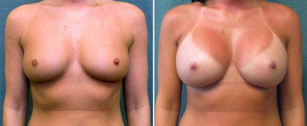 breast-augmentation-114a-kirby