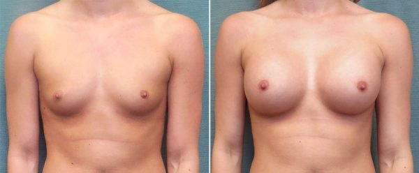 breast-augmentation-210a-kirby-