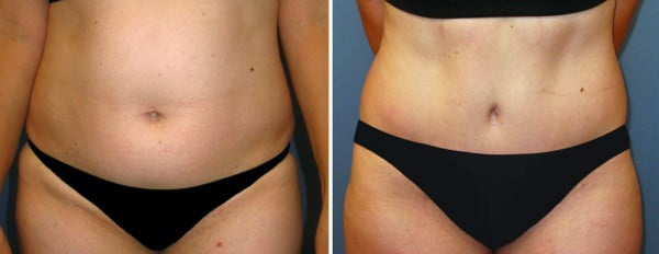 before and after tummy tuck fort worth tx