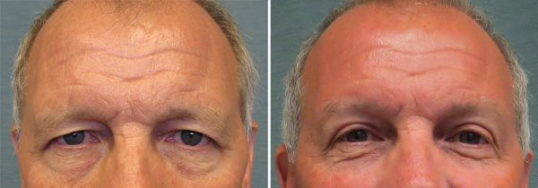 brow lift fort worth before and after photo